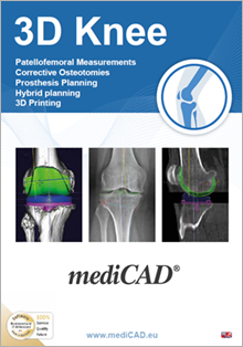 mediCAD Knee Brochure